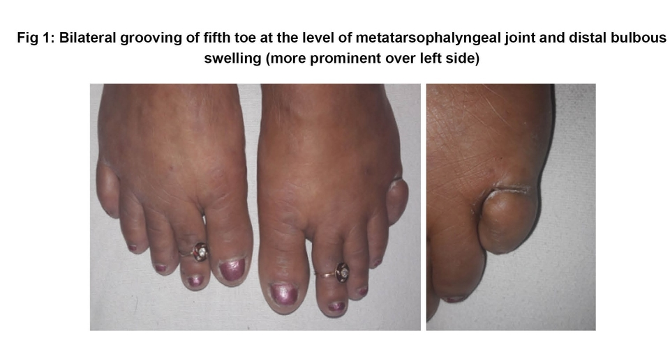 Bilateral grooving of fifth toe